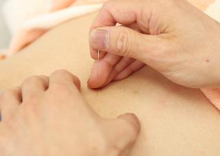 よくいただくご質問 追加20 「患部には鍼を打たないのですか?」